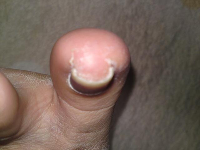 抗がん剤の副作用 巻き爪の巻
