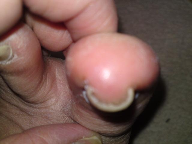 抗がん剤治療 巻き爪の巻 その3